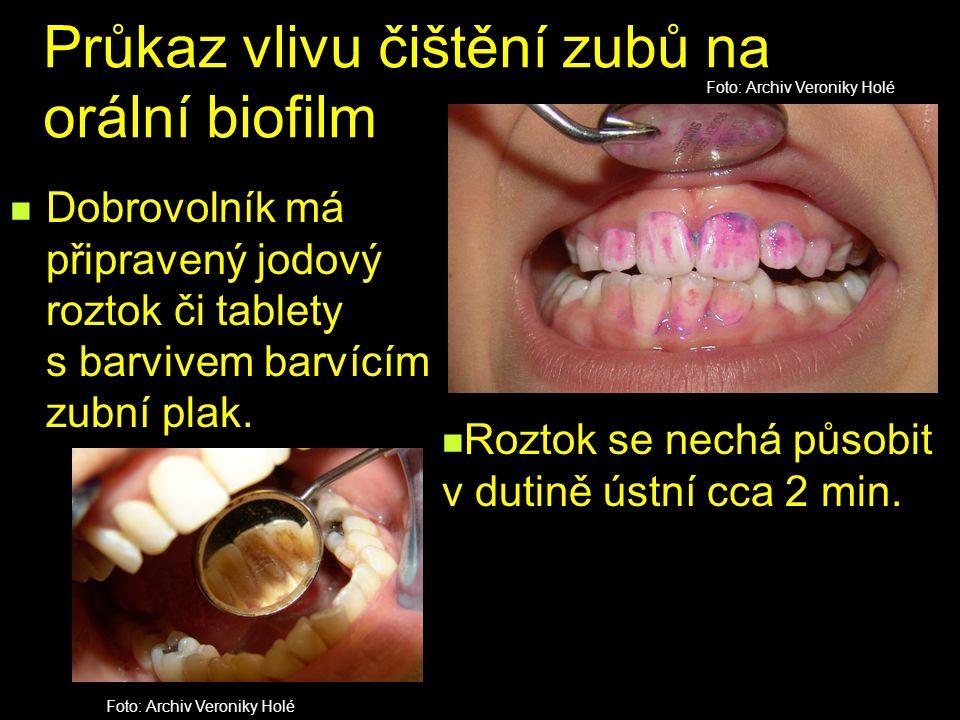 Průkaz vlivu čištění zubů na orální biofilm