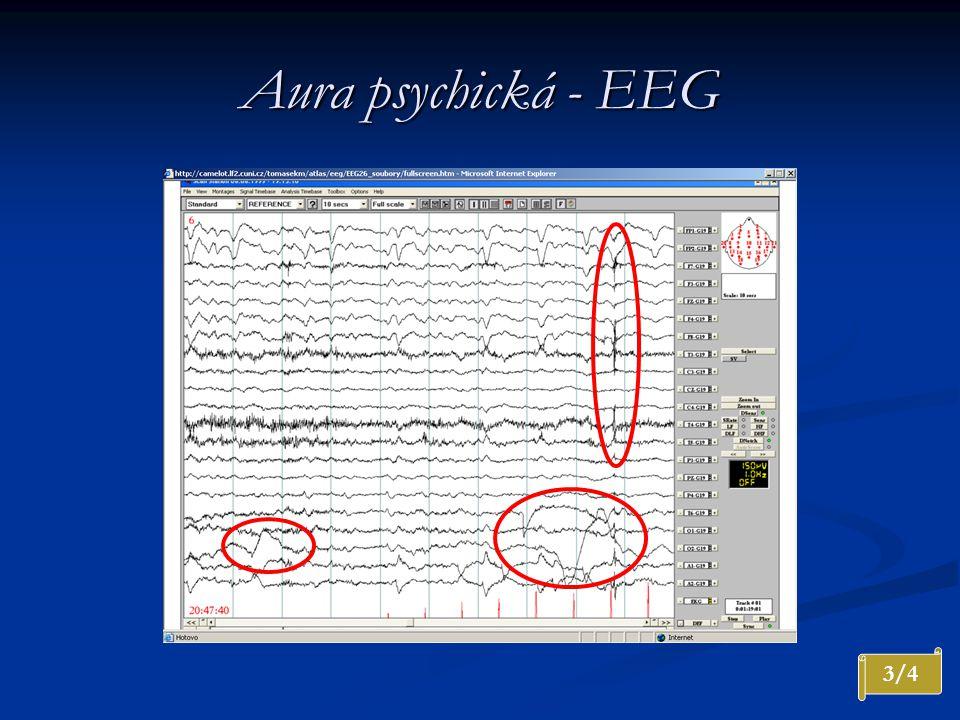 Aura psychická - EEG Nárůst amplitudy a místy rytmizace 4 Hz s maximem F vpravo. Artefakty svalové a oční.