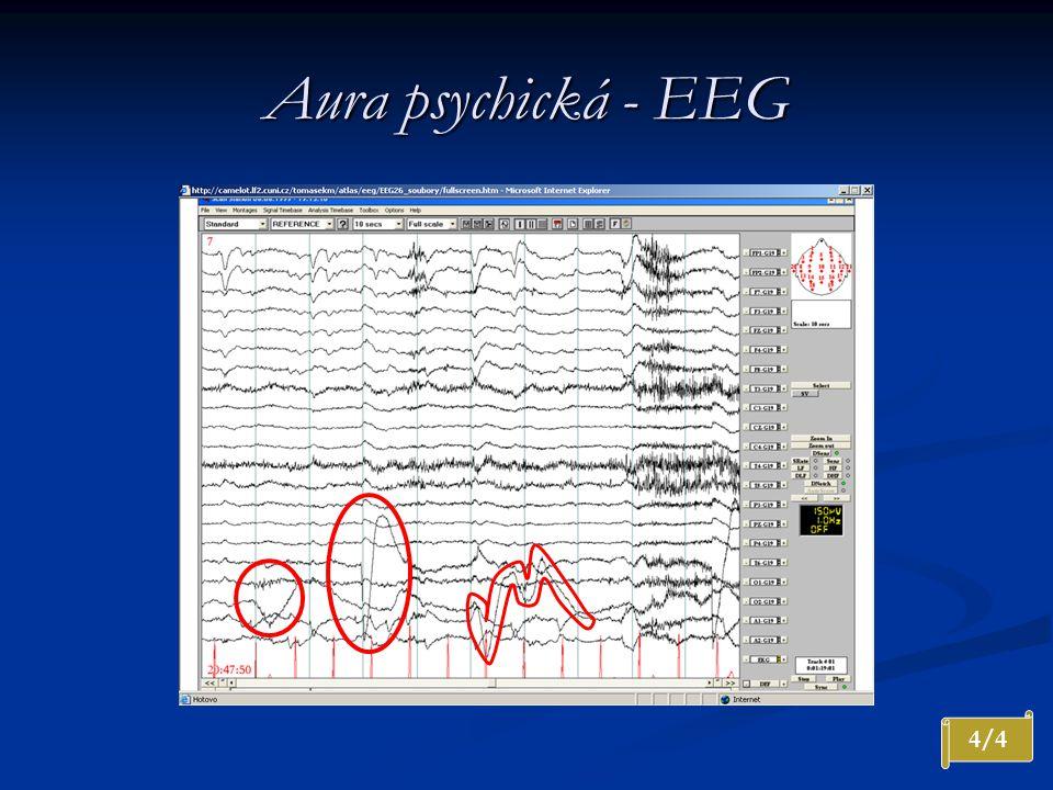 Aura psychická - EEG Konec v EEG. Artefakty svalové, pohybové a oční. Referenční zapojení, 10 sekund na stránce, amplituda 150 uV. LF 1,0 Hz.