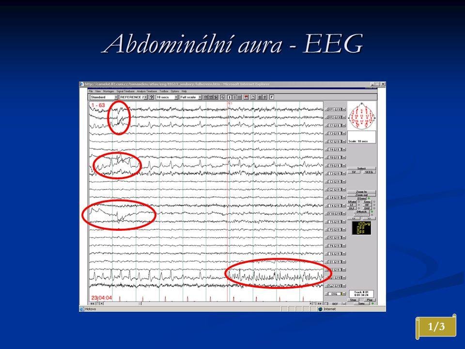 Abdominální aura - EEG 1/3