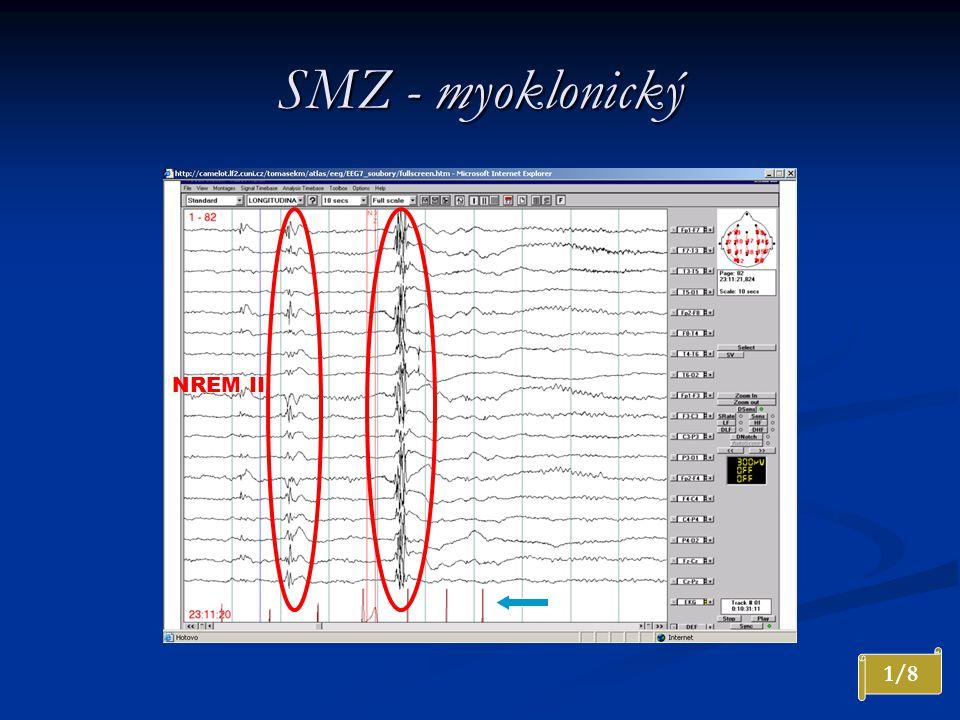 SMZ - myoklonický 1/8 NREM II