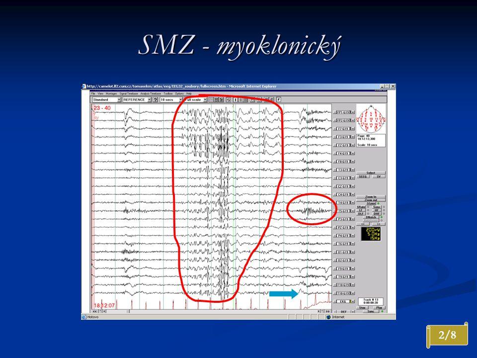 SMZ - myoklonický