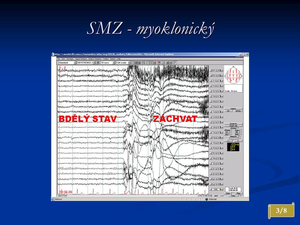 SMZ - myoklonický BDĚLÝ STAV ZÁCHVAT 3/8