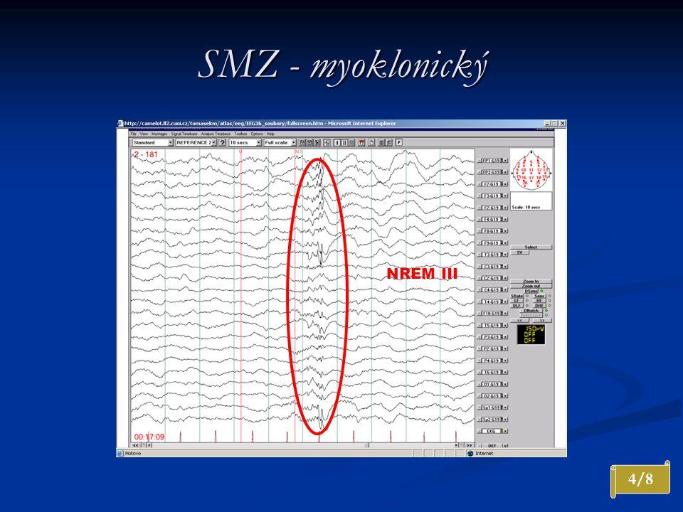 SMZ - myoklonický 4/8 NREM III