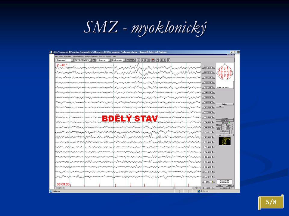 SMZ - myoklonický BDĚLÝ STAV 5/8