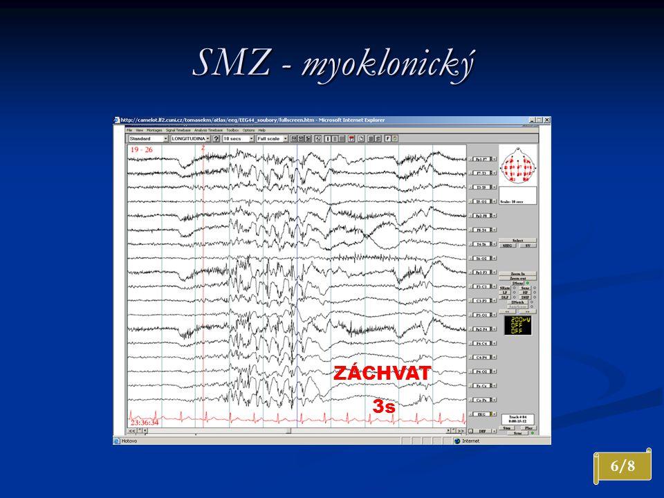 SMZ - myoklonický ZÁCHVAT 3s 6/8