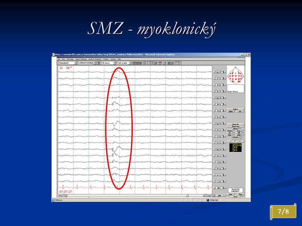SMZ - myoklonický Interiktální záznam. Generalizovaný výboj nepravidelného SW komplexu s výraznou převahou vpravo.