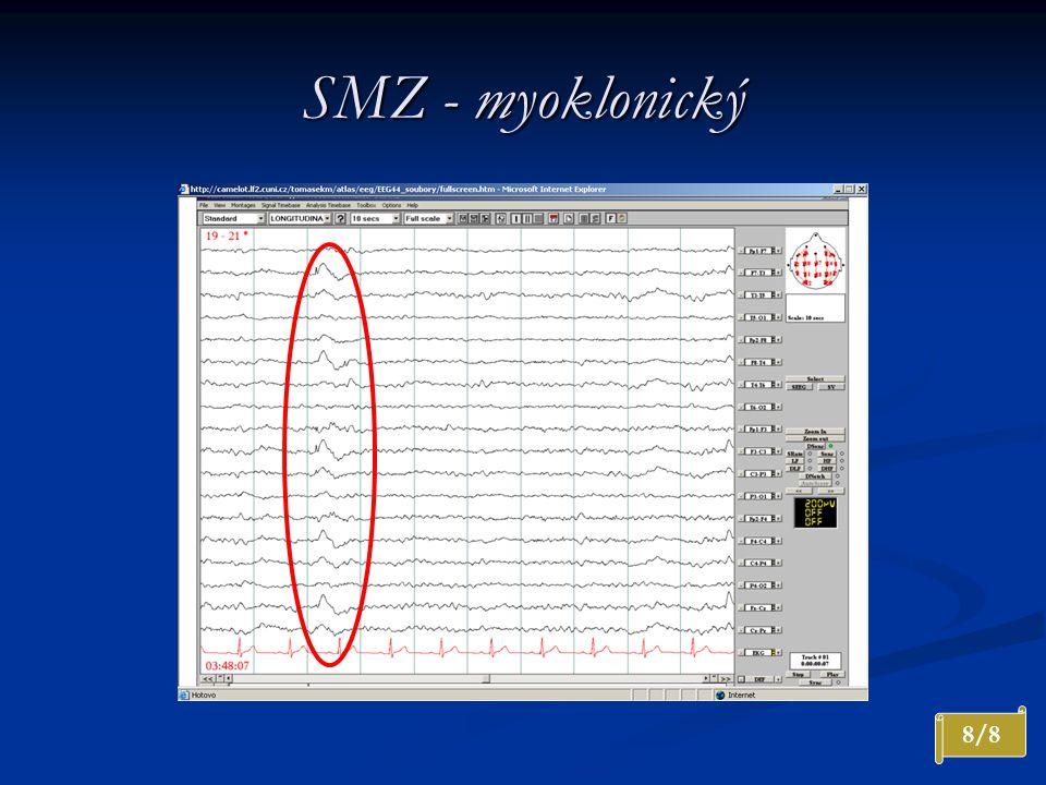 SMZ - myoklonický Interiktální záznam. Generalizovaný výboj nepravidelného SW komplexu s výraznou převahou vlevo.