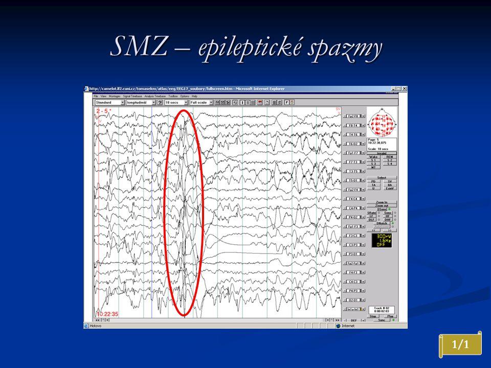 SMZ – epileptické spazmy