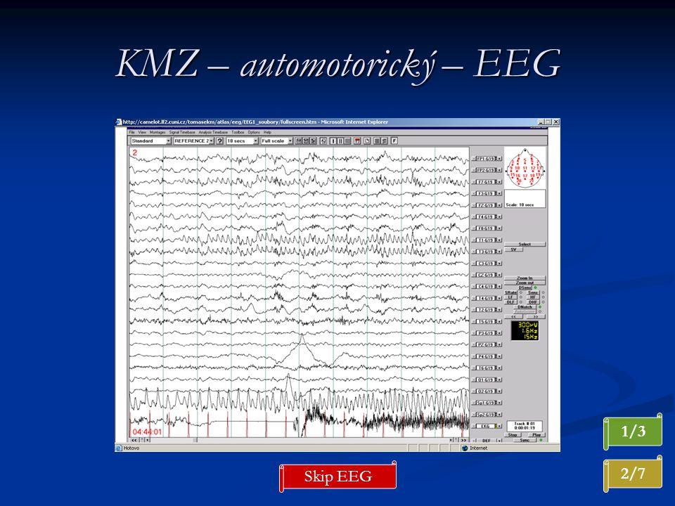 KMZ – automotorický – EEG