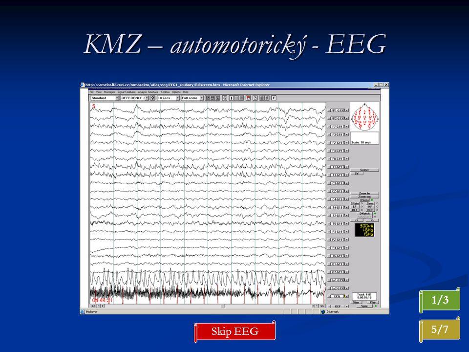 KMZ – automotorický - EEG