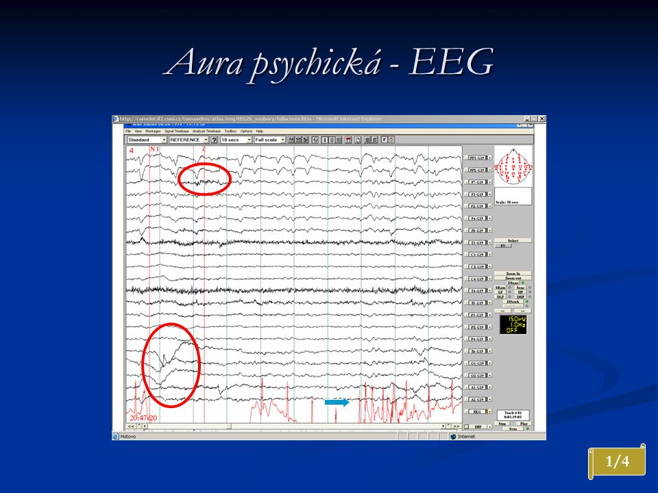 Aura psychická - EEG Nepravidelná nízká theta na F4. Klinicky psychická aura. Artefakty svalové a oční, artefakty v EKG.