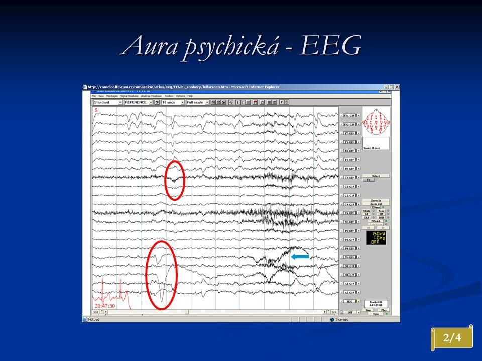 Aura psychická - EEG Nepravidelná theta na F4, Fz postupně s náznakem rytmizace 4 Hz. Klinicky pokračuje psychická aura. Artefakty svalové a oční.