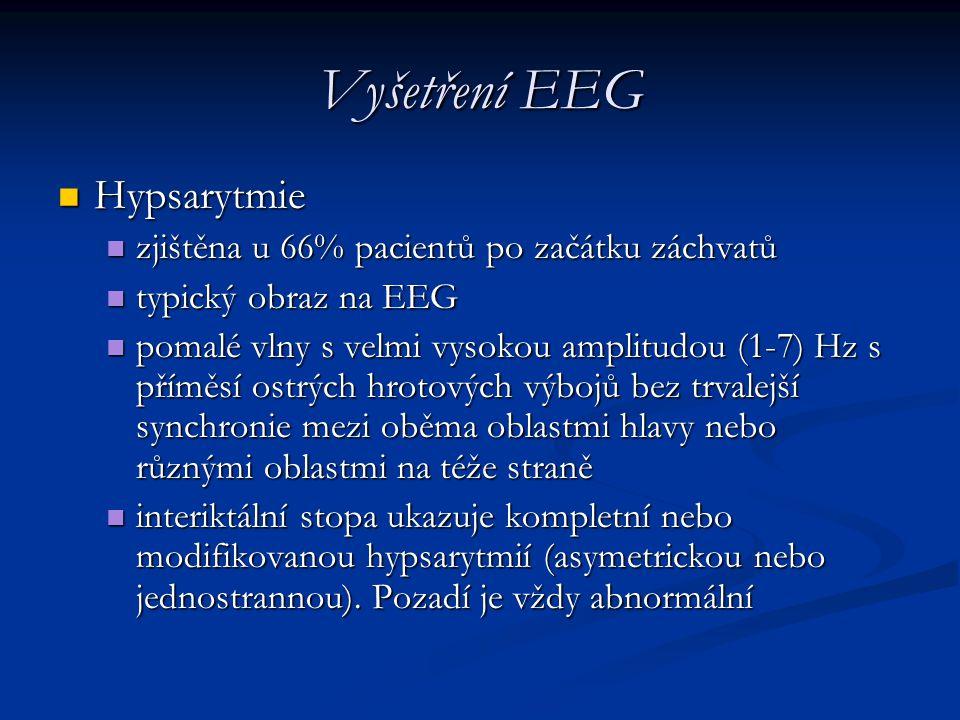 Vyšetření EEG Hypsarytmie zjištěna u 66% pacientů po začátku záchvatů