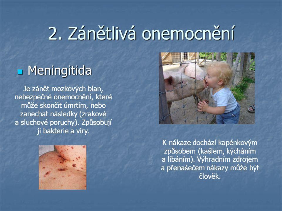 2. Zánětlivá onemocnění Meningitida