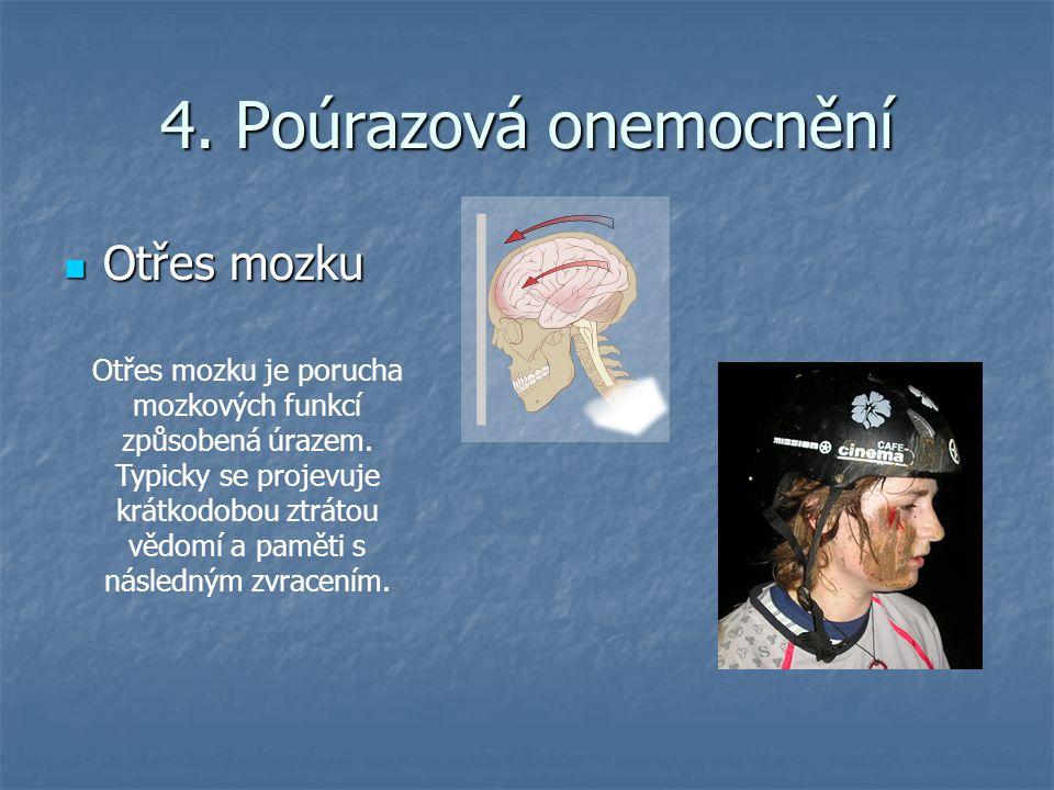4. Poúrazová onemocnění Otřes mozku