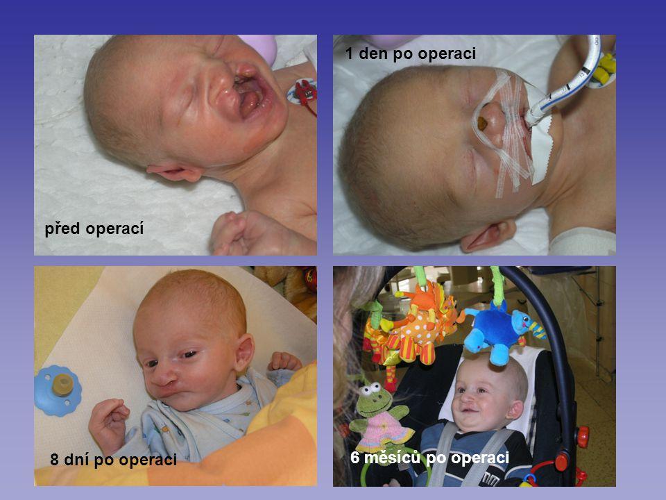 1 den po operaci před operací 8 dní po operaci 6 měsíců po operaci