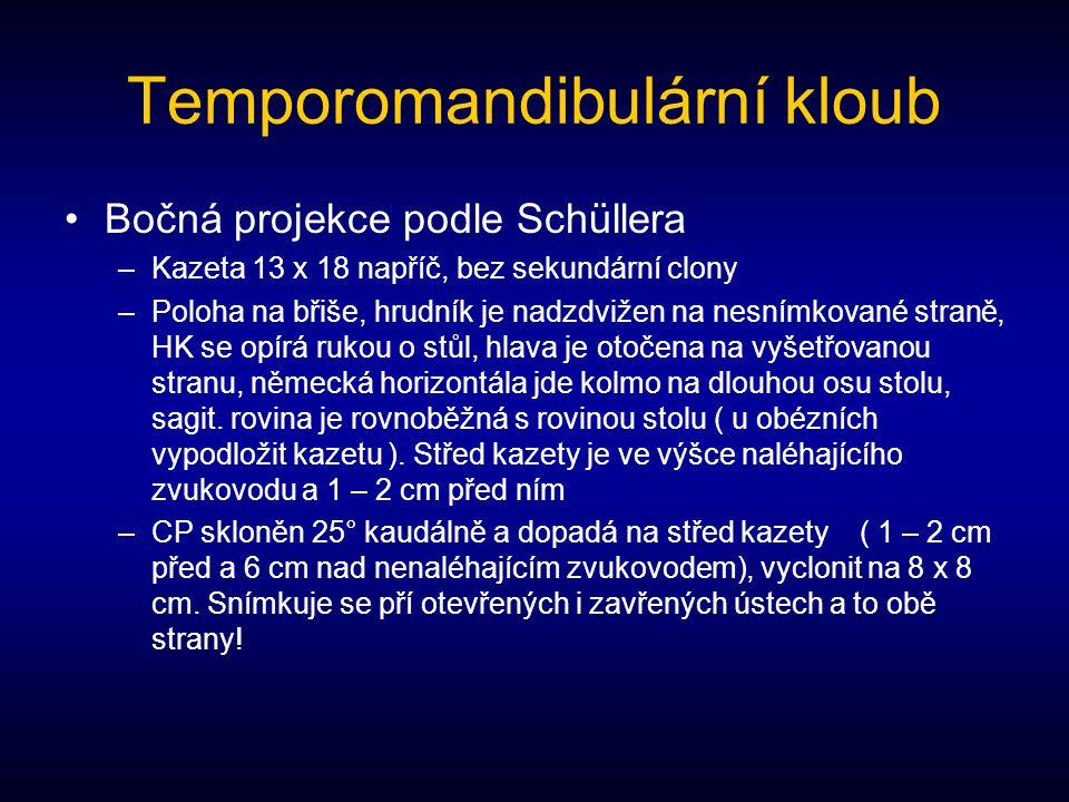 Temporomandibulární kloub
