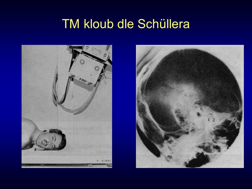 TM kloub dle Schüllera