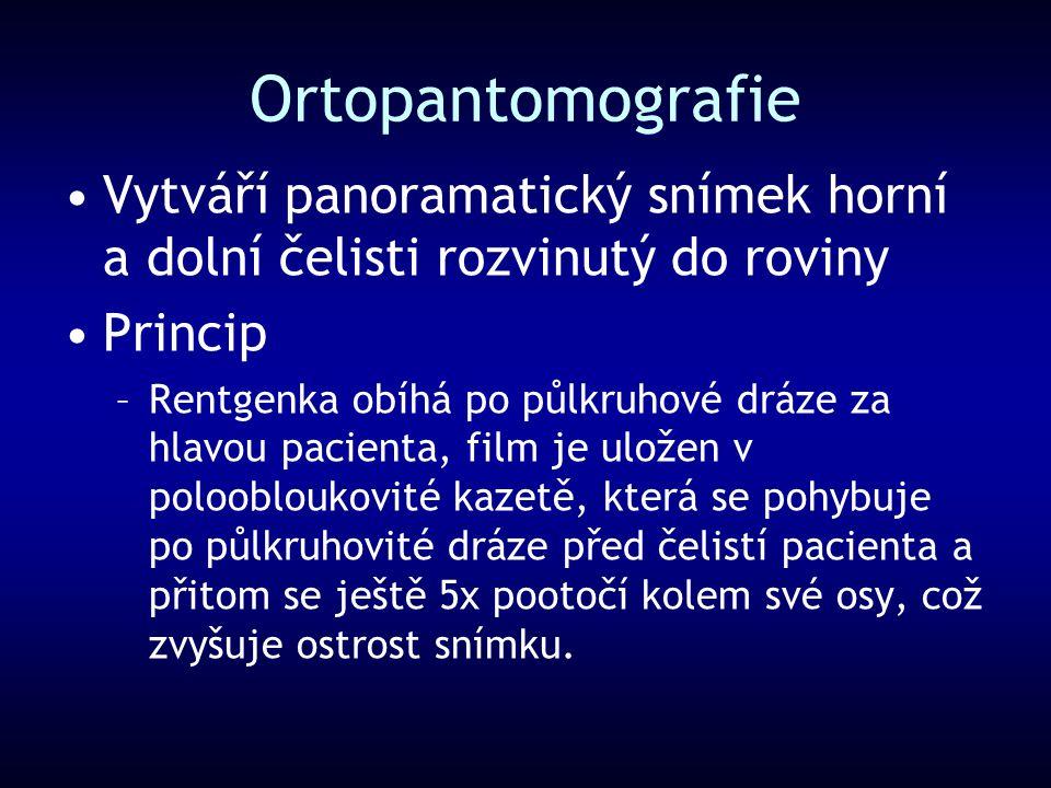 Ortopantomografie Vytváří panoramatický snímek horní a dolní čelisti rozvinutý do roviny. Princip.