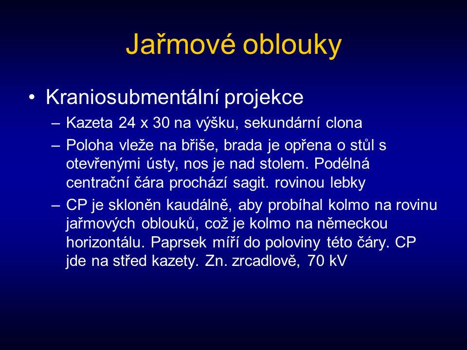 Jařmové oblouky Kraniosubmentální projekce