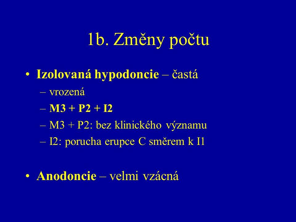 1b. Změny počtu Izolovaná hypodoncie – častá Anodoncie – velmi vzácná
