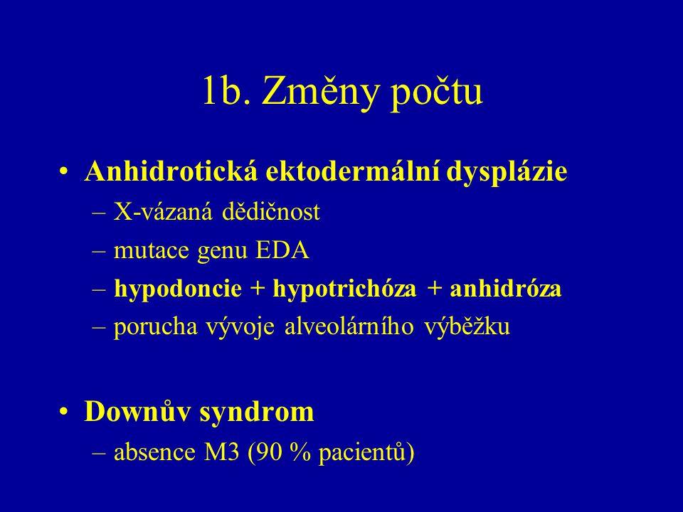 1b. Změny počtu Anhidrotická ektodermální dysplázie Downův syndrom