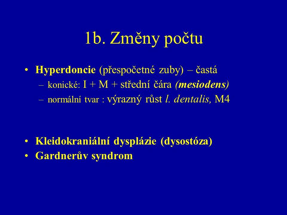 1b. Změny počtu Hyperdoncie (přespočetné zuby) – častá