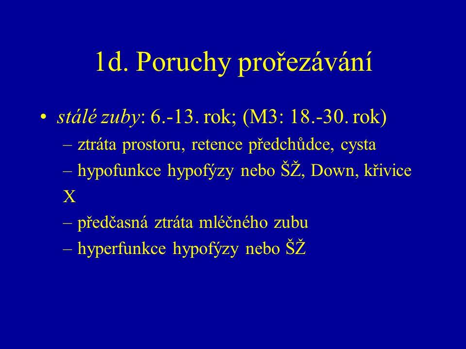 1d. Poruchy prořezávání stálé zuby: 6.-13. rok; (M3: 18.-30. rok)