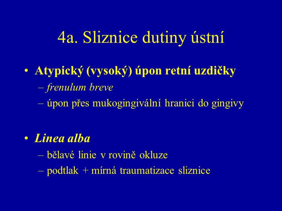 4a. Sliznice dutiny ústní