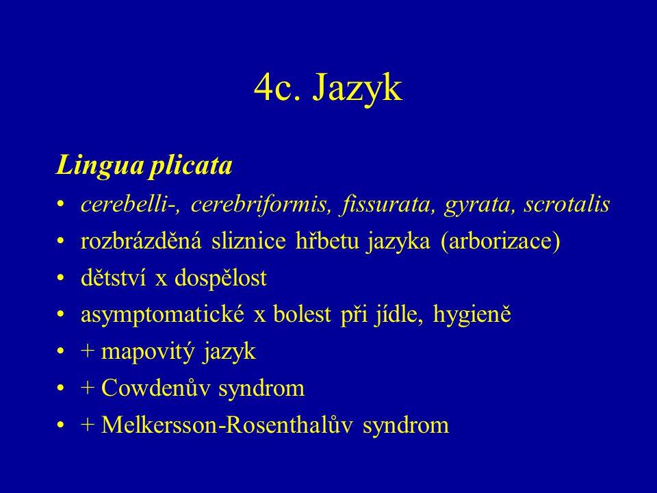 4c. Jazyk Lingua plicata. cerebelli-, cerebriformis, fissurata, gyrata, scrotalis. rozbrázděná sliznice hřbetu jazyka (arborizace)