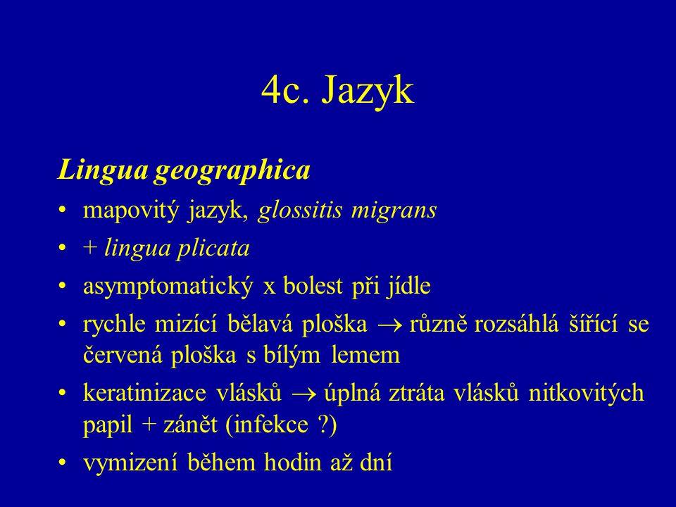4c. Jazyk Lingua geographica mapovitý jazyk, glossitis migrans