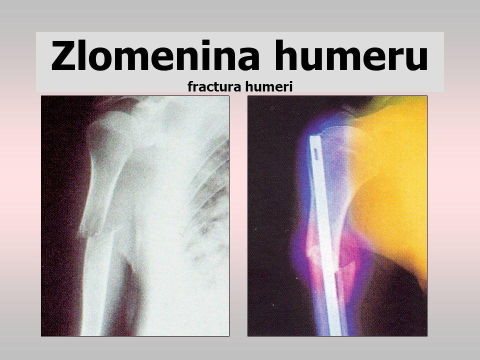 Zlomenina humeru fractura humeri