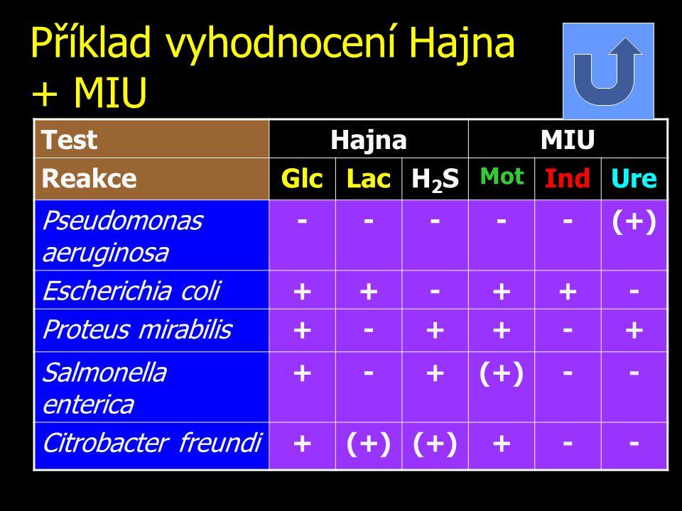 Příklad vyhodnocení Hajna + MIU