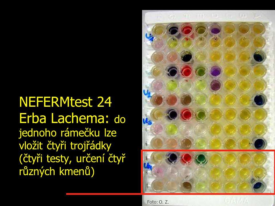 NEFERMtest 24 Erba Lachema: do jednoho rámečku lze vložit čtyři trojřádky (čtyři testy, určení čtyř různých kmenů)