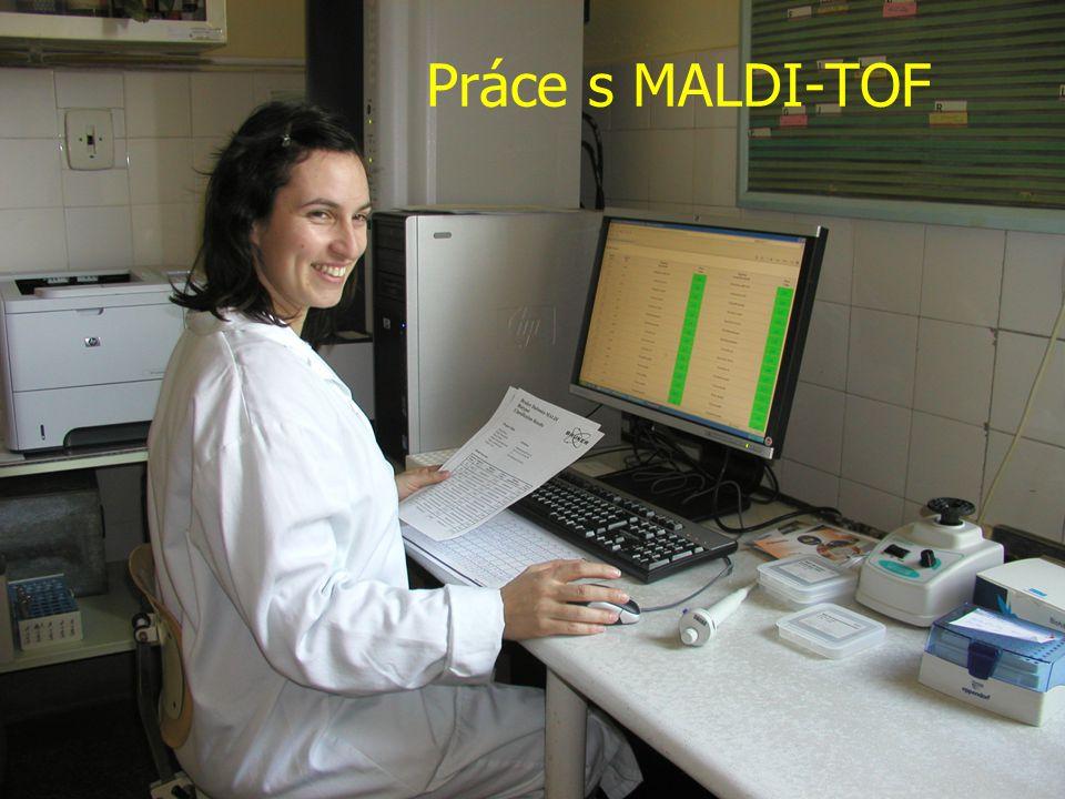 Práce s MALDI-TOF