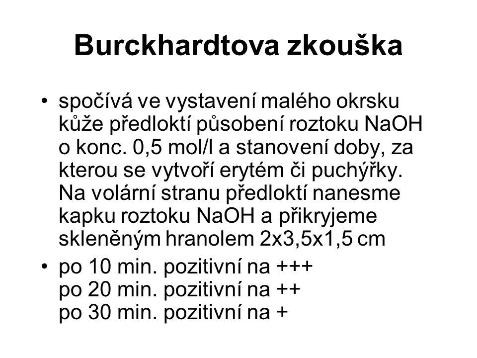 Burckhardtova zkouška