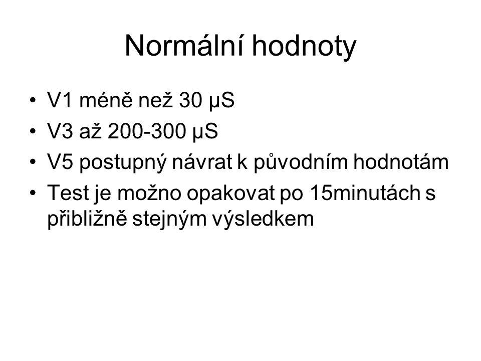 Normální hodnoty V1 méně než 30 μS V3 až 200-300 μS