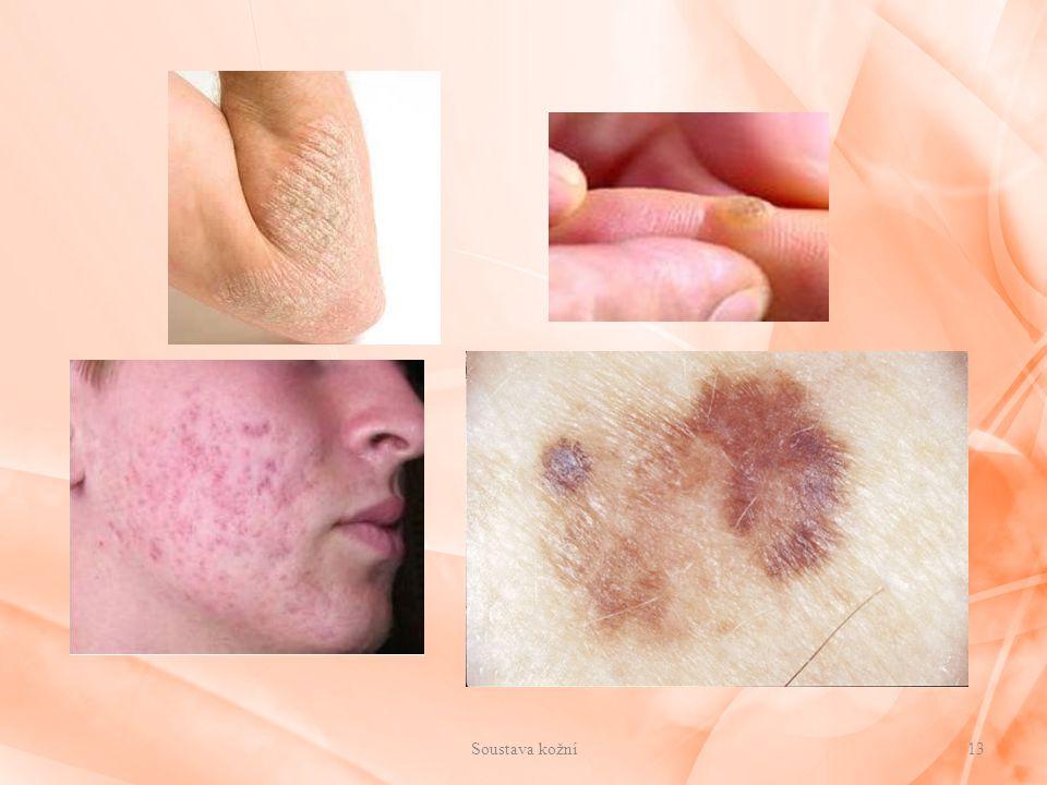 Soustava kožní