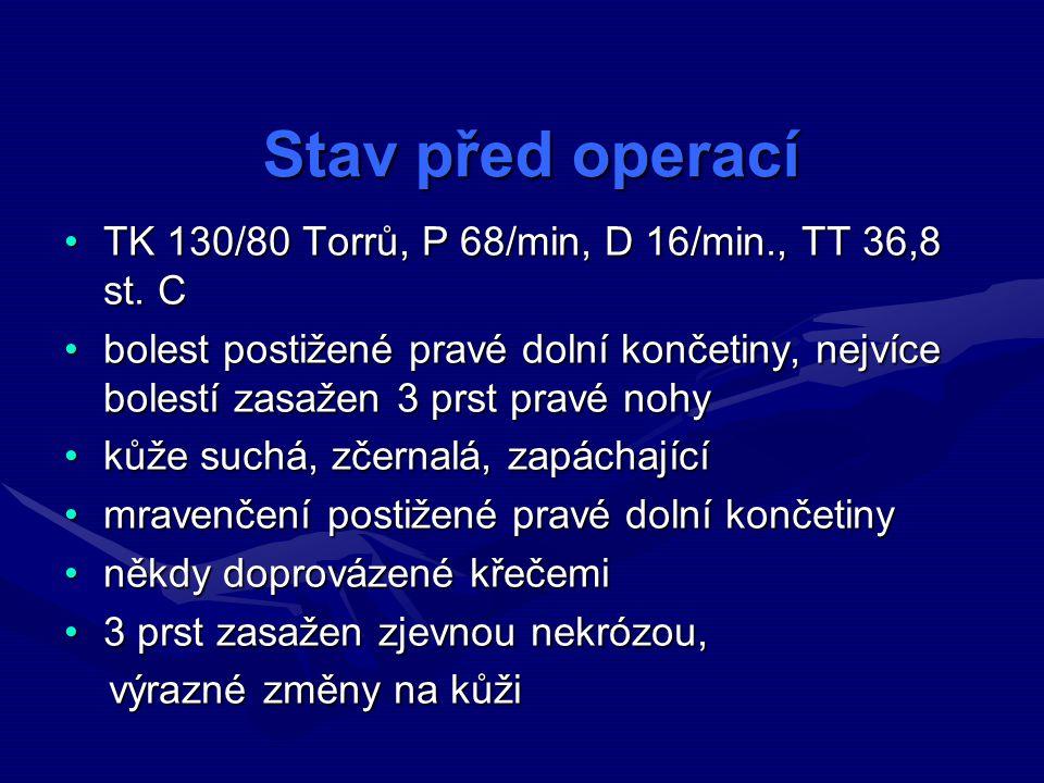Stav před operací TK 130/80 Torrů, P 68/min, D 16/min., TT 36,8 st. C