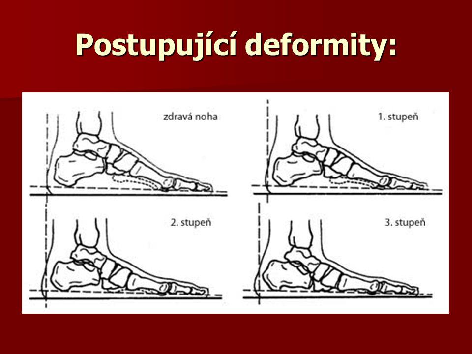 Postupující deformity: