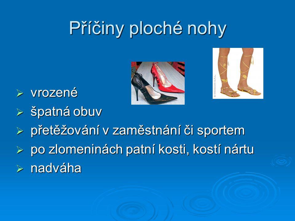 Příčiny ploché nohy vrozené špatná obuv