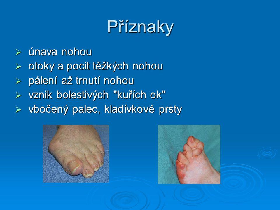 Příznaky únava nohou otoky a pocit těžkých nohou