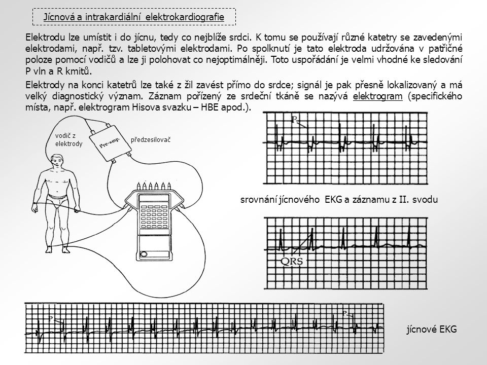 Jícnová a intrakardiální elektrokardiografie