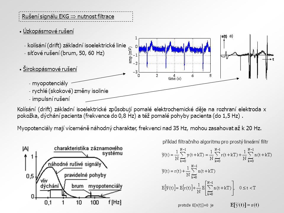 Rušení signálu EKG  nutnost filtrace