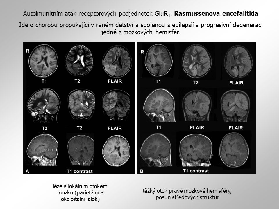 Autoimunitním atak receptorových podjednotek GluR3: Rasmussenova encefalitida