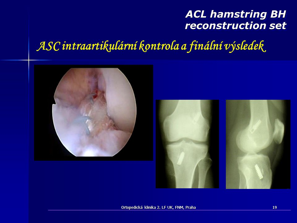 ASC intraartikulární kontrola a finální výsledek