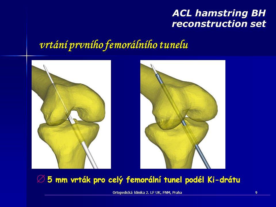 ACL hamstring BH reconstruction set vrtání prvního femorálního tunelu