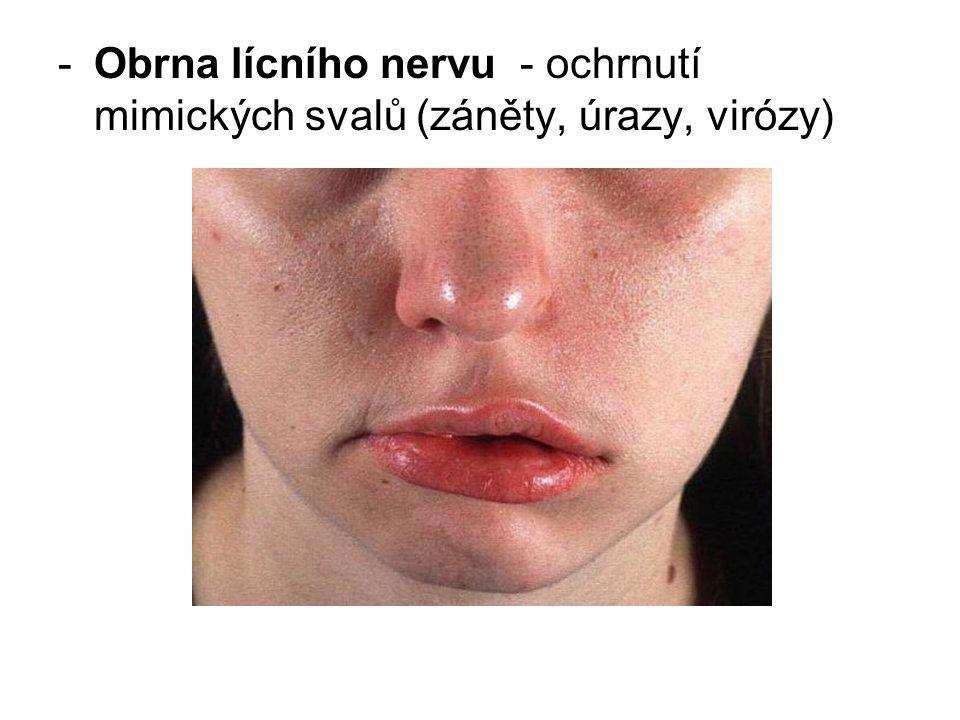 Obrna lícního nervu - ochrnutí mimických svalů (záněty, úrazy, virózy)