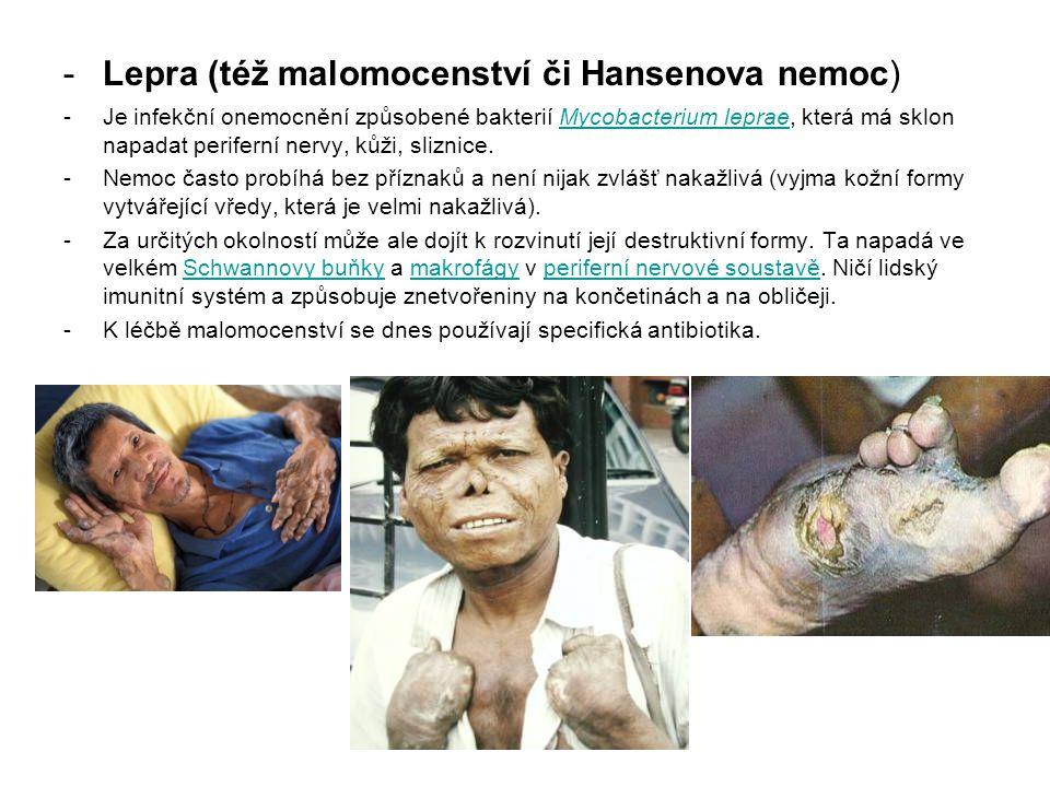 Lepra (též malomocenství či Hansenova nemoc)